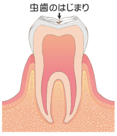 虫歯 CO